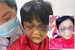 Bé gái ở Hải Dương bị mẹ đẻ đánh tím mặt, nhốt trong phòng trọ