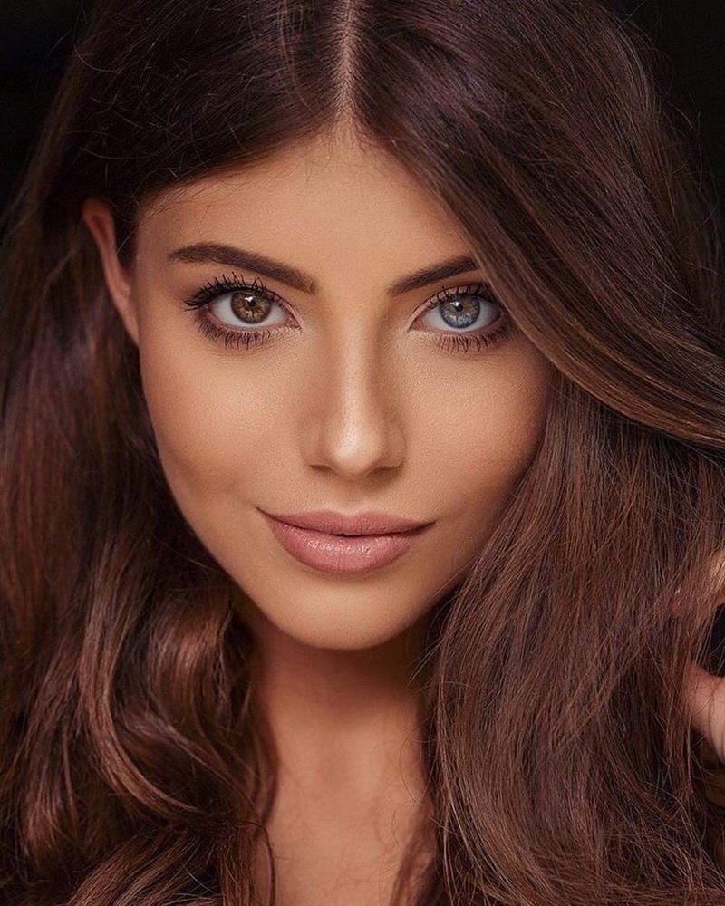 CỰC HIẾM: Hoa hậu có đôi mắt tự nhiên mang 2 màu khác biệt-9