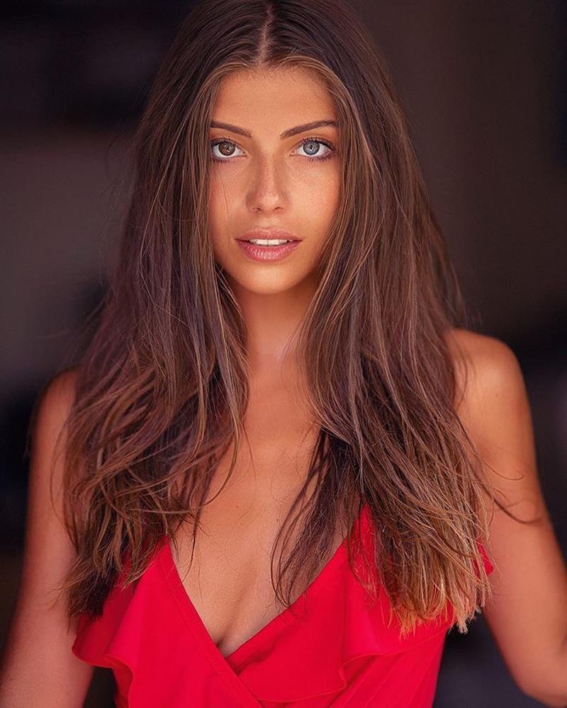 CỰC HIẾM: Hoa hậu có đôi mắt tự nhiên mang 2 màu khác biệt-11