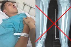 Sự thật hình ảnh chụp X-quang gãy chân của Hùng Dũng