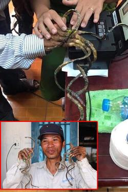 'Dị nhân' móng tay dài nhất Việt Nam: Cắt là ốm, thay áo mất 15'