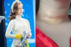 MC Quỳnh Chi phải phẫu thuật vì tế bào ung thư xâm lấn