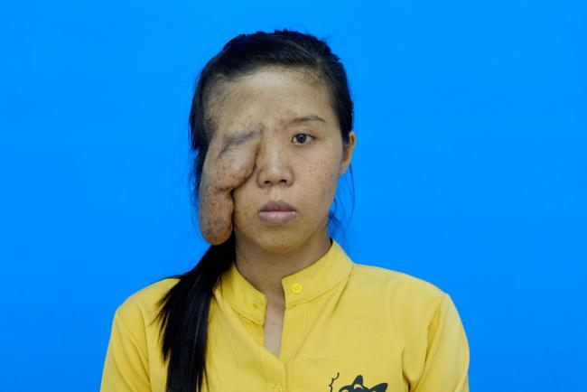 Mẹ đơn thân một mắt và 3 cuộc đại phẫu, phản ứng con gái gặp lại mẹ rớt nước mắt-3
