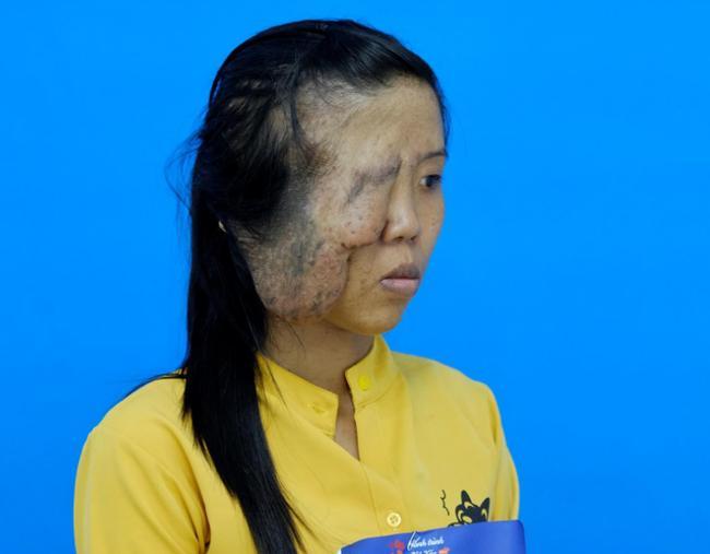 Mẹ đơn thân một mắt và 3 cuộc đại phẫu, phản ứng con gái gặp lại mẹ rớt nước mắt-4