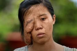Mẹ đơn thân 'một mắt' và 3 cuộc đại phẫu, phản ứng con gái gặp lại mẹ rớt nước mắt