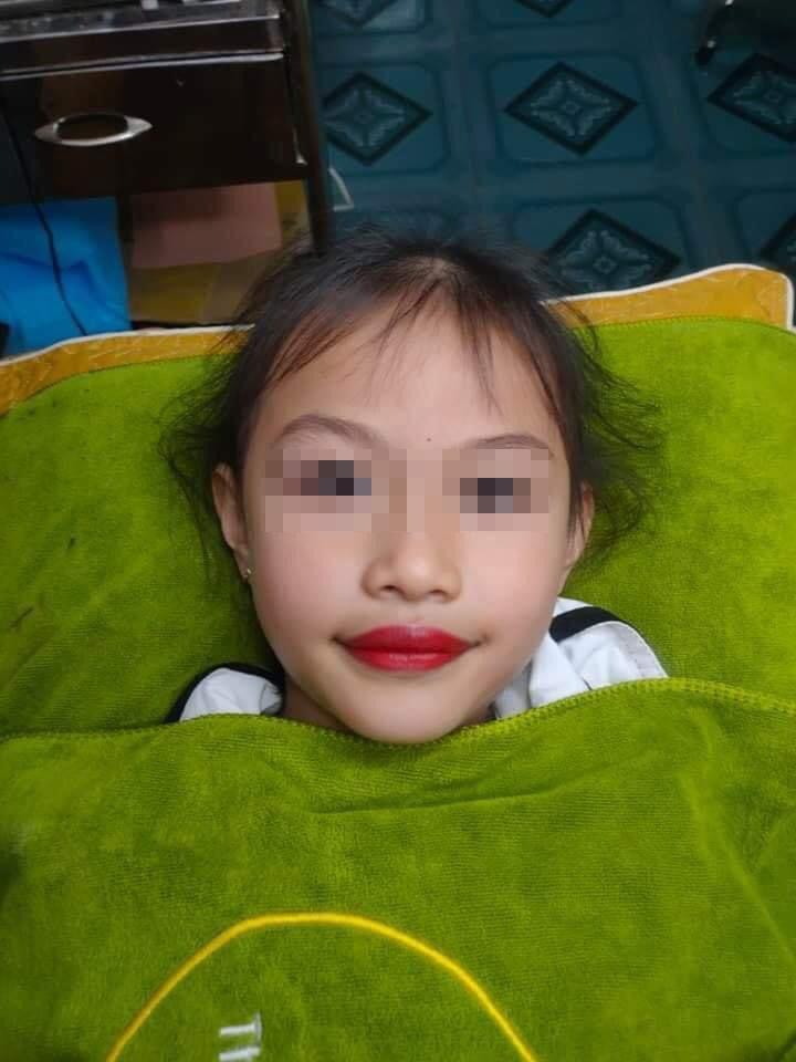 Xôn xao chuyện phụ huynh để bé gái 5 tuổi xăm môi đỏ mọng-3