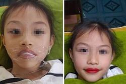 Xôn xao chuyện phụ huynh để bé gái 5 tuổi xăm môi đỏ mọng