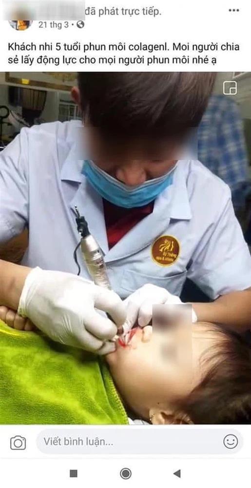 Từ chuyện bé 5 tuổi phun môi collagen: Phun xăm môi cho trẻ em dẫn đến những hệ lụy gì?-1