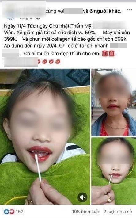 Từ chuyện bé 5 tuổi phun môi collagen: Phun xăm môi cho trẻ em dẫn đến những hệ lụy gì?-2