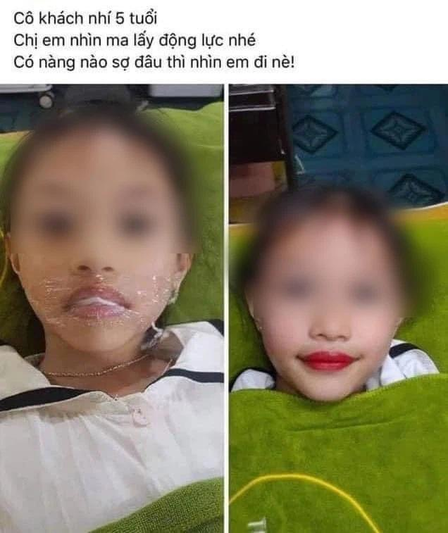 Từ chuyện bé 5 tuổi phun môi collagen: Phun xăm môi cho trẻ em dẫn đến những hệ lụy gì?-4