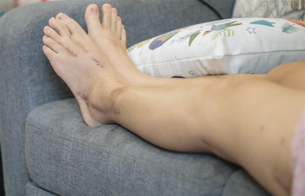 Nữ tiếp viên hàng không sống ra sao sau khi bị đâm, thương tật 79% sức khỏe?-5