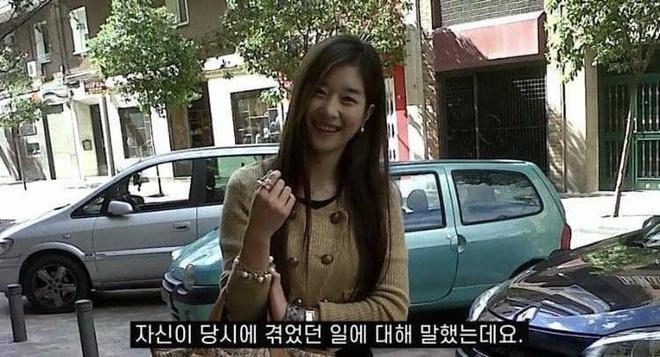 Điên nữ Seo Ye Ji lộ khuyết điểm cười hở lợi, ảnh quá khứ khác xa hiện tại-4