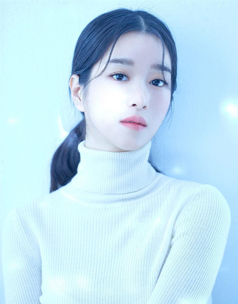 Điên nữ Seo Ye Ji lộ khuyết điểm cười hở lợi, ảnh quá khứ khác xa hiện tại-9