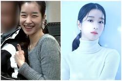 'Điên nữ' Seo Ye Ji lộ khuyết điểm cười hở lợi, ảnh quá khứ khác xa hiện tại