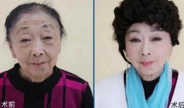 Phẫu thuật níu giữ chồng trẻ, cặp đôi bà cháu cách 33 tuổi vẫn đường ai nấy đi-4