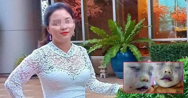 Cô giáo phủ nhận việc đánh trẻ 18 tháng nhập viện-2