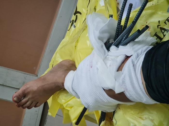 Kinh hoàng: Thanh niên bị 11 thanh sắt từ xe ba gác đâm xuyên chân-2