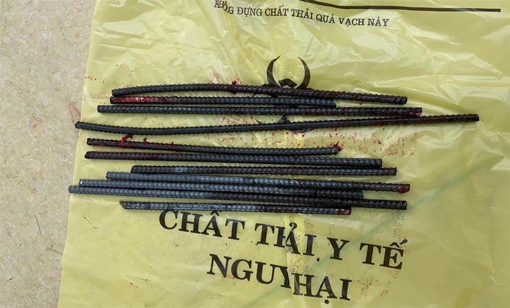 Kinh hoàng: Thanh niên bị 11 thanh sắt từ xe ba gác đâm xuyên chân-4