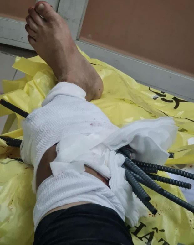 Kinh hoàng: Thanh niên bị 11 thanh sắt từ xe ba gác đâm xuyên chân-3