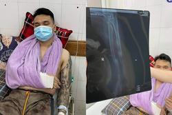 Khắc Việt gặp chấn thương nghiêm trọng, nhập viện cấp cứu