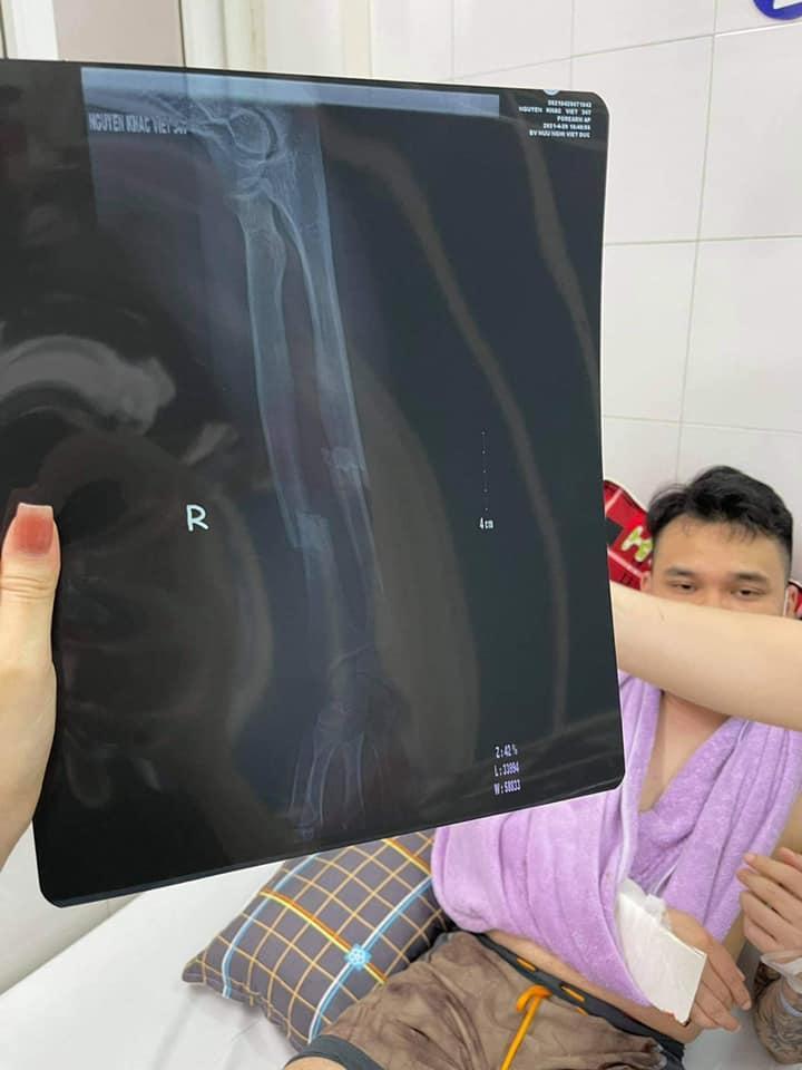 Khắc Việt gặp chấn thương nghiêm trọng, nhập viện cấp cứu-2