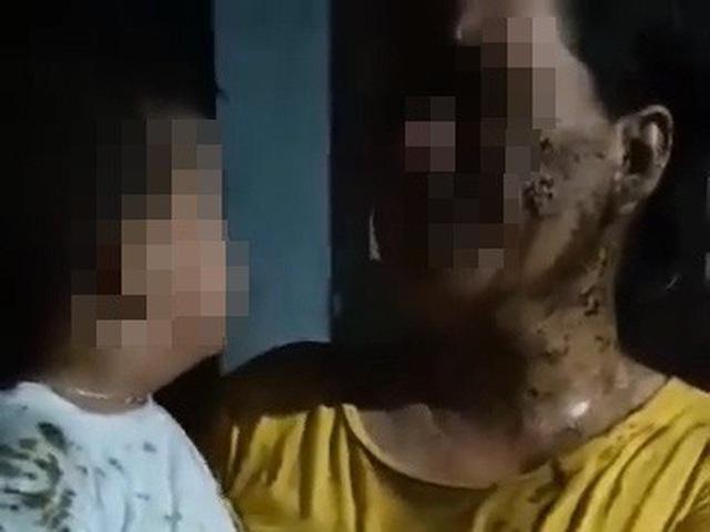Phẫn nộ: Bé 2 tuổi bị hàng xóm đổ phân lên đầu vì mẹ vay nợ chưa trả-2