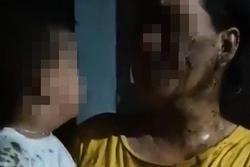 Phẫn nộ: Bé 2 tuổi bị hàng xóm đổ phân lên đầu vì mẹ vay nợ chưa trả