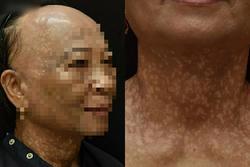 Người phụ nữ ở TP.HCM mắc bệnh hiếm khiến tóc rụng nửa đầu