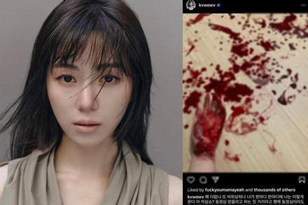 Mina (AOA) đăng ảnh bàn tay be bét máu, nghi cố tự tử