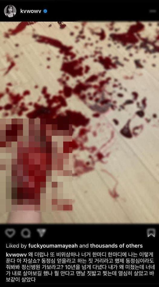 Mina (AOA) đăng ảnh bàn tay be bét máu, nghi cố tự tử-1