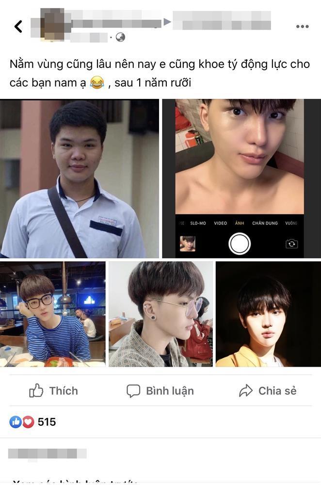 Chàng trai ngốn 60 triệu phẫu thuật, nào ngờ biến hình thành Trần Đức Bo-1