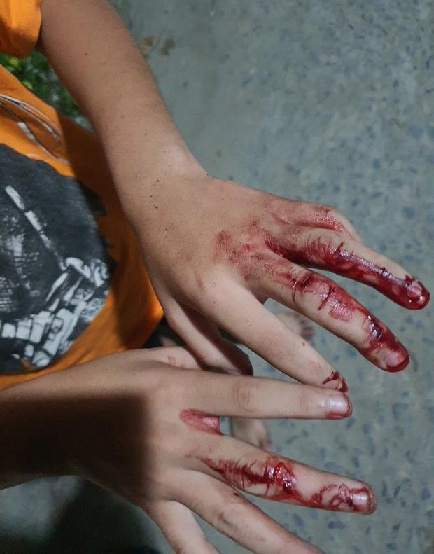 Clip: Phẫn nộ cha đánh con trai dập nát tay, bắt đi bán vé số-2