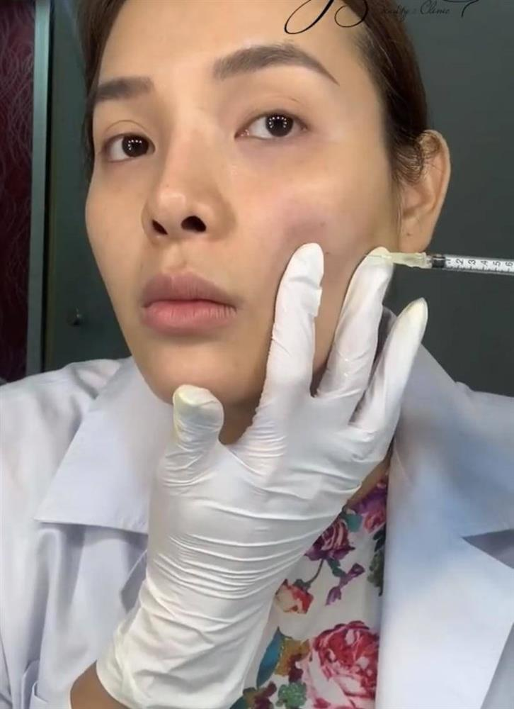 Huyền Baby - Phương Trinh Jolie: 2 mỹ nhân công khai tiêm filler mặt nhìn nổi da gà-3