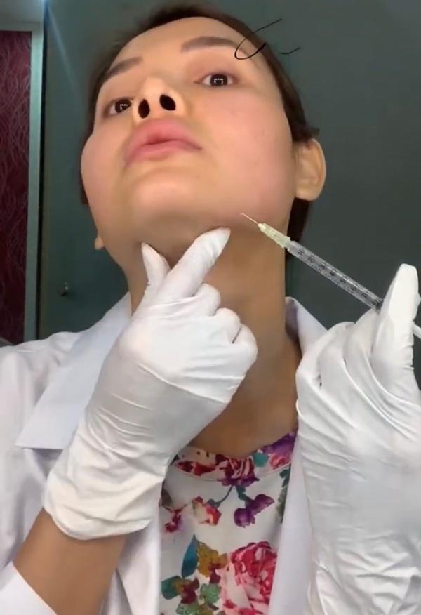 Huyền Baby - Phương Trinh Jolie: 2 mỹ nhân công khai tiêm filler mặt nhìn nổi da gà-4
