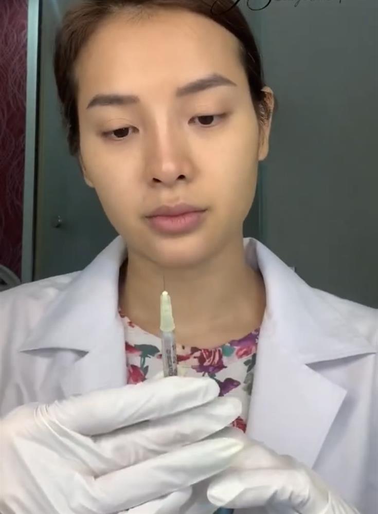 Huyền Baby - Phương Trinh Jolie: 2 mỹ nhân công khai tiêm filler mặt nhìn nổi da gà-5