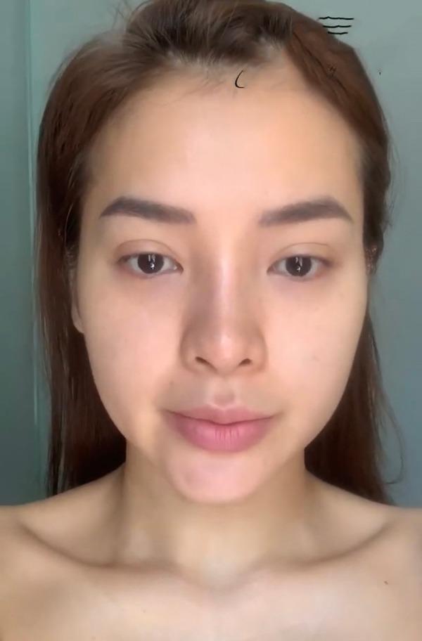 Huyền Baby - Phương Trinh Jolie: 2 mỹ nhân công khai tiêm filler mặt nhìn nổi da gà-6