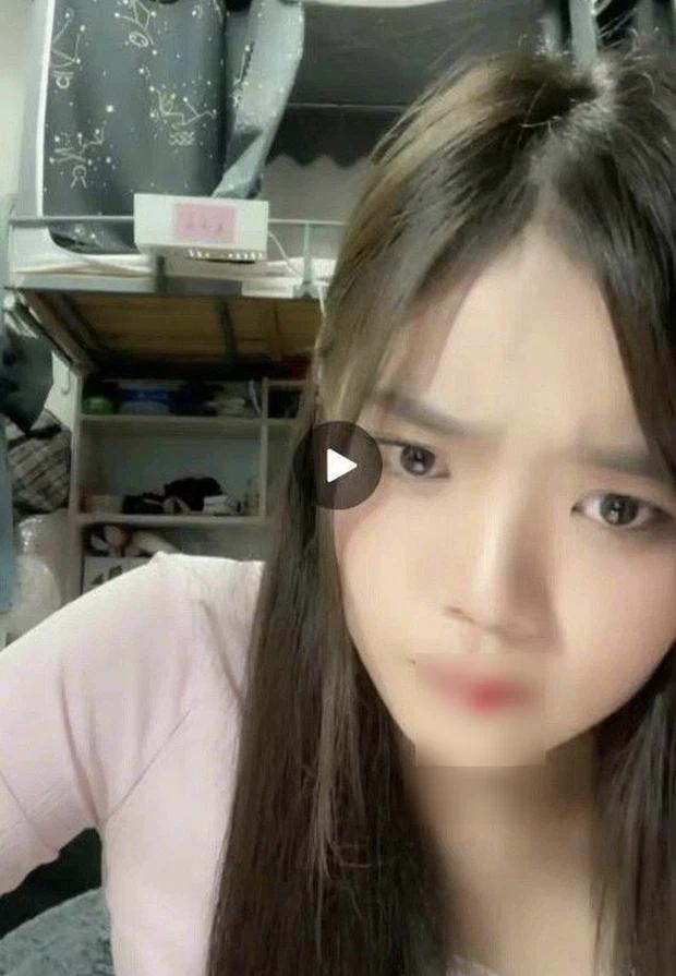Đang livestream, nữ idol nhăn nhó rồi bất ngờ... hộc máu miệng trước sự bàng hoàng của netizen-2