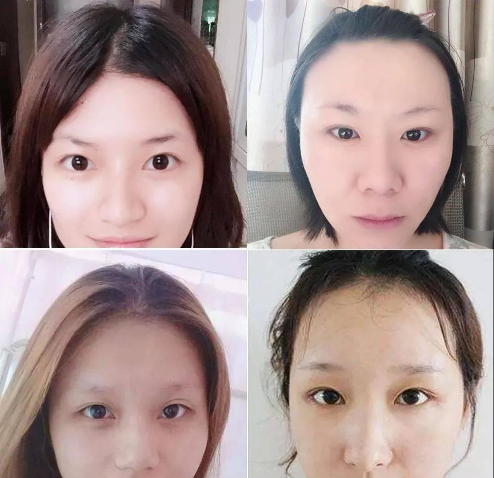 Lông mày phù hợp F5 gương mặt thần kỳ hơn cả phẫu thuật thẩm mỹ-3