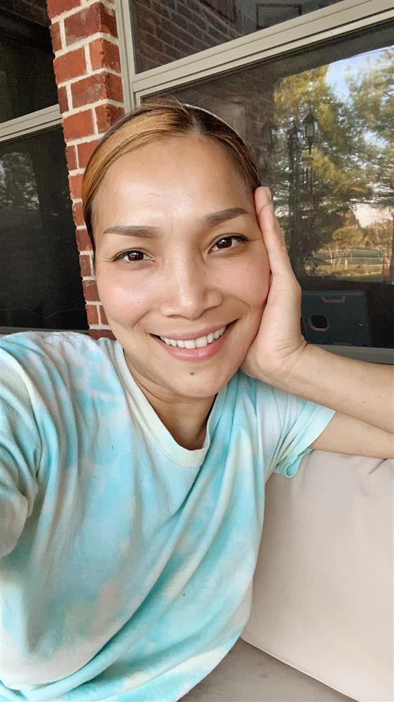 Cận cảnh gương mặt Hồng Ngọc sau 1 năm bị bỏng nặng-1