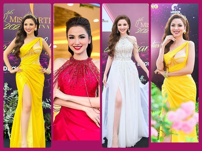 Hoa hậu Diễm Hương: Tôi bị bệnh hiếm, 10.000 người mới có 1 người bị-1