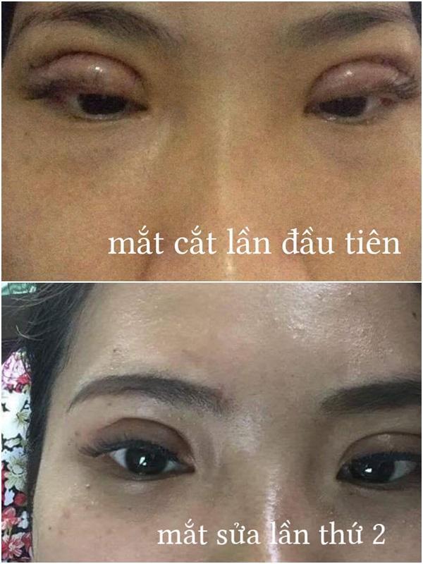 Thảm họa cắt mí: Cô gái 5 lần phẫu thuật vì mắt con đậu con bay-3