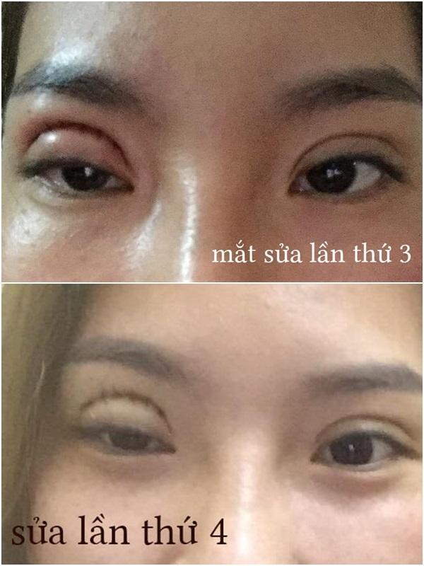 Thảm họa cắt mí: Cô gái 5 lần phẫu thuật vì mắt con đậu con bay-4