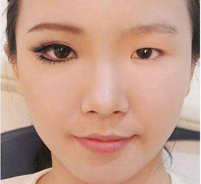 Thảm họa cắt mí: Cô gái 5 lần phẫu thuật vì mắt con đậu con bay-10
