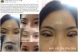 Thảm họa cắt mí: Cô gái 5 lần phẫu thuật vì mắt 'con đậu con bay'