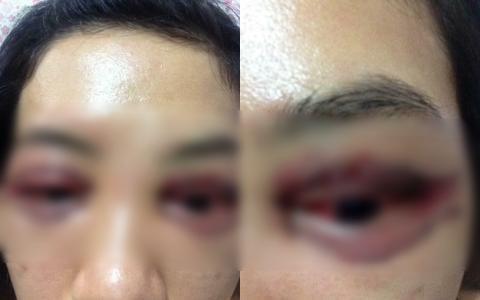 Thảm họa cắt mí: Cô gái 5 lần phẫu thuật vì mắt con đậu con bay-9