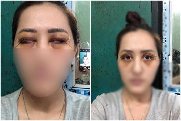 Thảm họa cắt mí: Cô gái 5 lần phẫu thuật vì mắt con đậu con bay-8