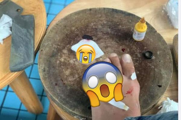 Bủn rủn xem thanh niên livestream chặt phăng ngón chân vì cãi nhau với bạn gái-2