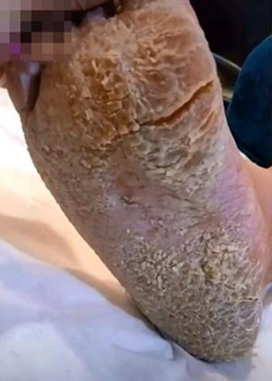 Rùng mình bàn chân như đất hạn hán và pha gọt da chết rơi lả tả-1