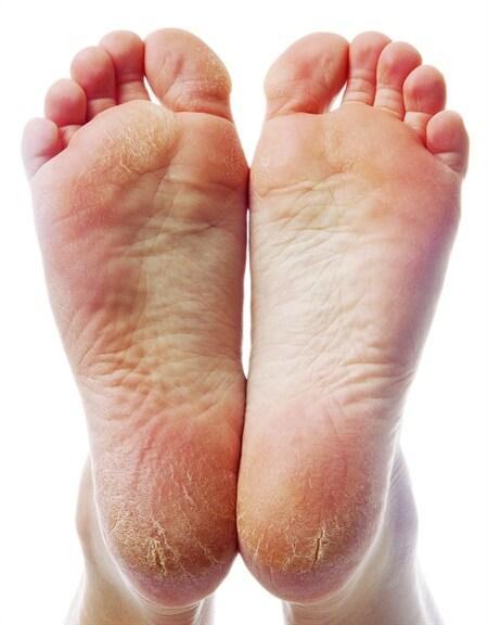 Rùng mình bàn chân như đất hạn hán và pha gọt da chết rơi lả tả-7