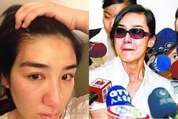 5 mỹ nhân Hoa ngữ bị người tình đánh đập hung tàn